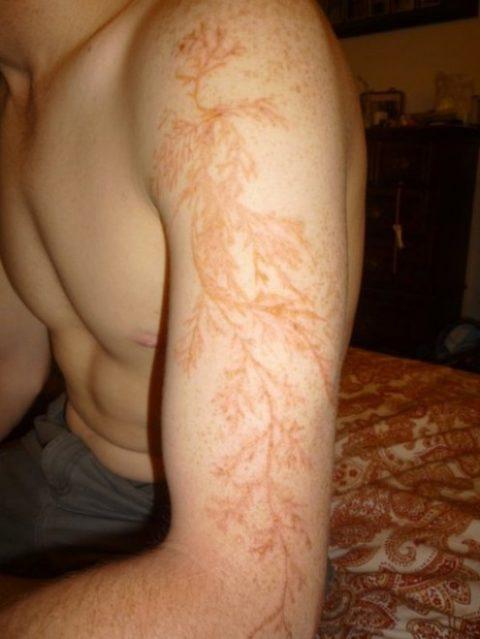 skin-500x666.jpg