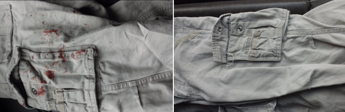 gum removed from clothing (before and after)